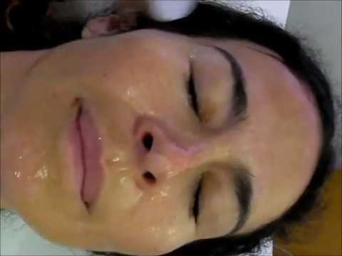 Maschera con dimeksidy per la persona da posti di pigmentary
