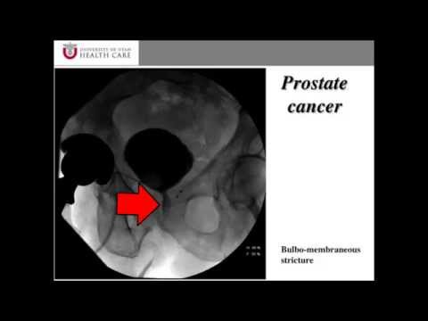 Radiation Injury and Prostate Cancer