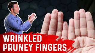 Wrinkled Pruney Fingers : Causes & Remedy Explained by Dr.Berg