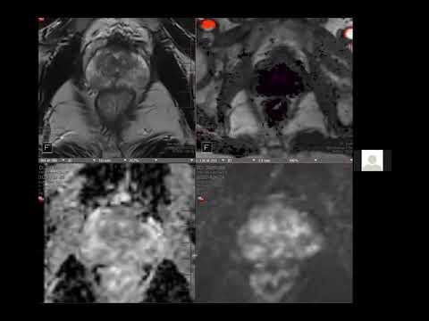 Prostatitis kenőcs felülvizsgálata