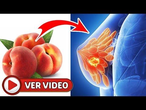 Disminución de azúcar en la sangre en mujeres embarazadas