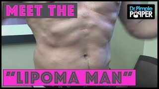 Introducing...(Self-Proclaimed) Lipoma Man!! With Updates!!