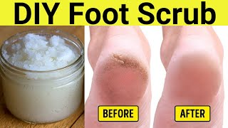Homemade Foot Scrub To Remove Hard Dead Skin On Feet Without Pumice Stone