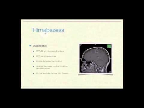 Don zur Behandlung von Bandscheibenvorfall Lendenwirbelsäule