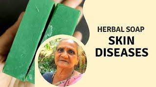 Herbal soap for skin diseases