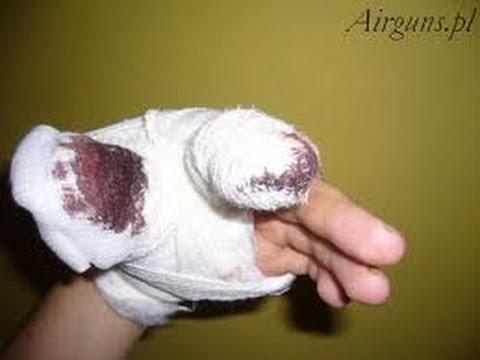 Ból stawów kciuk ramię wskoczy na zagięcia