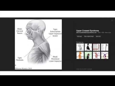 Choroba stawów i mięśni leczenie