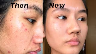 How to treat Red Acne Marks (Post-Inflammatory Erythema) | Everything you need to know about PIE |