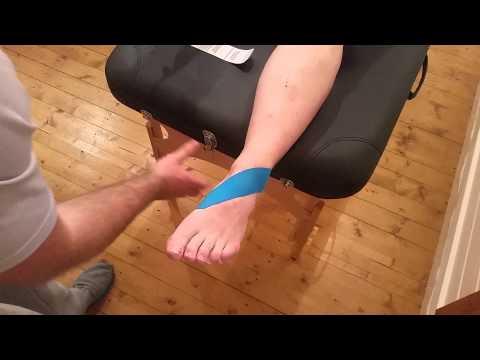 Danni al menisco del ginocchio ICD