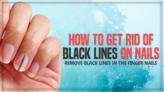 Tiny Black Lines on Nails: How to Get Rid of Black Lines on Finger Nails