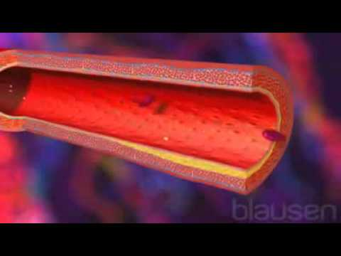 Crises dhypertension. classification actuelle
