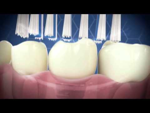 Emmi-dent Ultrasonic Toothbrush