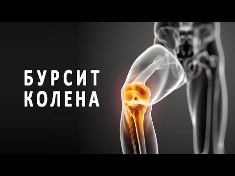 Что такое бурсит коленного сустава и как он лечится?