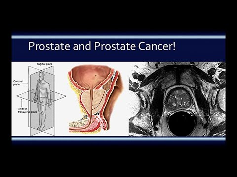 The thyroid gland is the prostate