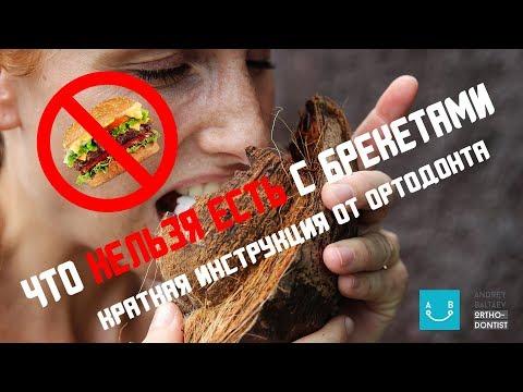 Влог Ортодонта #4 - Что нельзя есть с брекетами?
