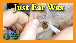Ear Wax Removal Doctor | Auburn Medical Group