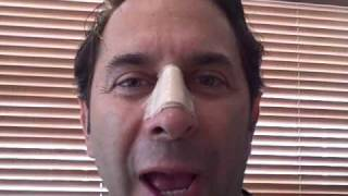 Dr. Paul Nassif — Nasal Injury Journal Day 6