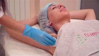 Лечение потливости при помощи ботулотоксина в Diamond Laser