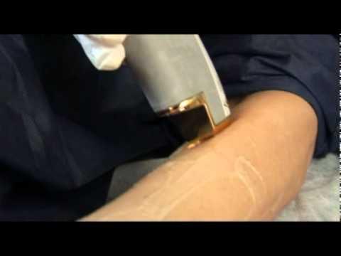 Varicoză doctor de tratament pentru picioare