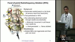 Radiofrequency Ablation Rfa For Lumbar Facet Arthropathy  Hisashi Wesley Kobayashi, Md