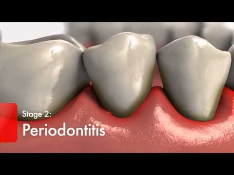 Video Diabetes and Gum Disease   Video - Diabetics High Risk for Oral Health Problems   Colgate3
