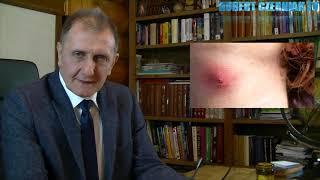 Hubert Czerniak TV #22 Cukrzyca   Sposoby Leczenia  Wszystkie Typy  Przyczyny  Plaga XXI W.