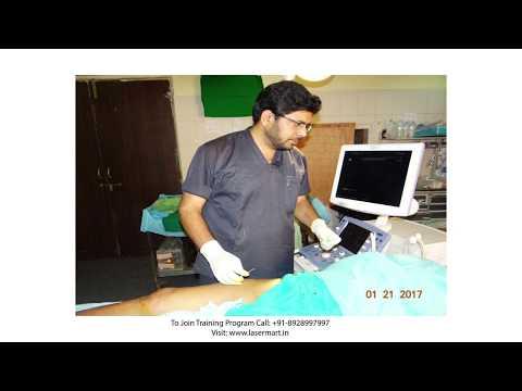 Trattamento di varicosity da metodo del dottore di un kapralov