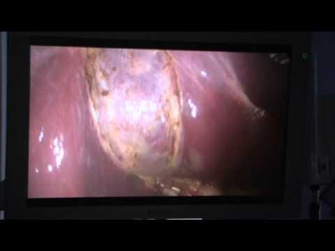 S jednotlivými kalcifikace prostaty