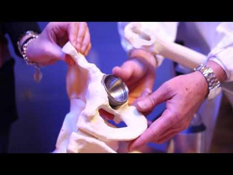 Un costo di protesi danca di ceramica