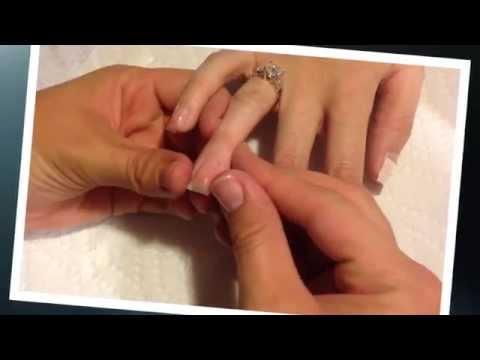 Lyandeks-traitement du microorganisme végétal des ongles