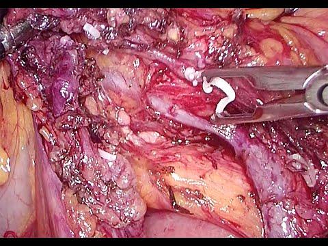 Całkowite wycięcie krezki okrężnicy (CME) metodą laparoskopową - hemikolektomia prawostronna