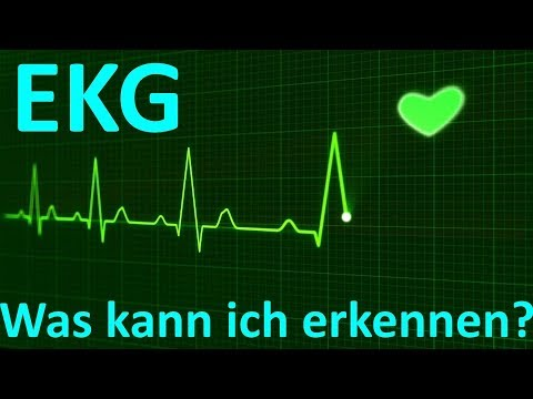 Was erkennt man beim EKG Monitoring (3-Kanal)?