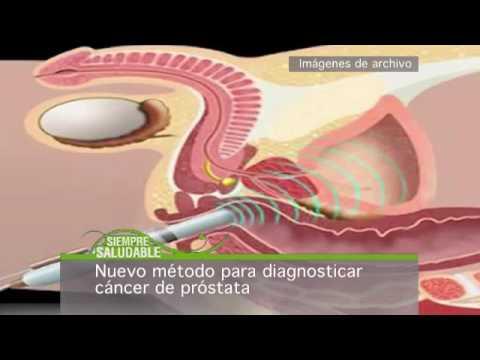 Un método para tratar el cáncer de próstata
