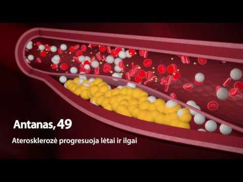 Trečio laipsnio hipertenzija rizikuoja 4 kas tai yra