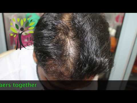 Hair Fall its Cause Management and Realtime 20 Cured Cases