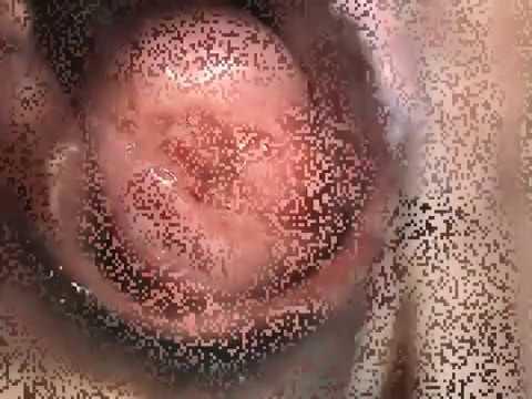 Эрозия шейки матки, лечение CO2 лазером Asclepion