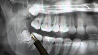 Impacted Wisdom Teeth San Diego