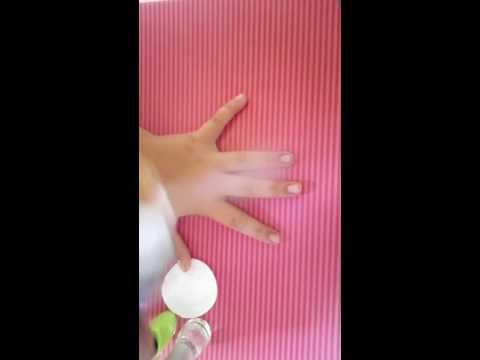 Gribok der Nägel auf den Händen nach dem Ansetzen die Behandlung