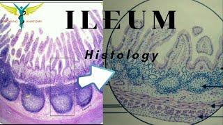 Histology of Ileum