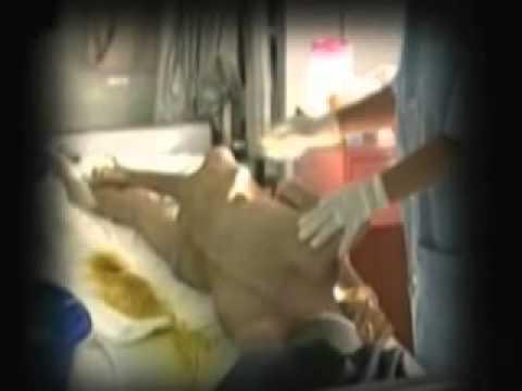 ลิ่มเลือดอุดตันเฉียบพลันของเรื่องขาหลอดเลือดดำลึก