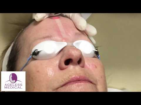 CO2 Laser - Fort Lauderdale, Cooper City