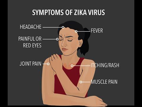 Video zika fever - zika virus symptoms - every one should know