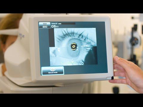 Oogklachten scan bij de opticien - OCT scan