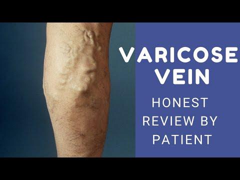 Cum să dezvăluiți picioarele varicoase