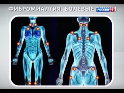 Фибромиалгия – болезнь, которая маскируется под остеохондроз