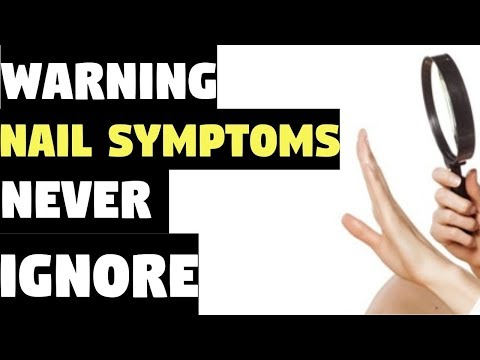 Video Nail Symptoms and What It Means for Your Health! | Nail Symptoms