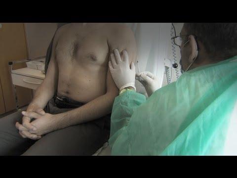 La prevenzione di osteoartrite rimedi popolari
