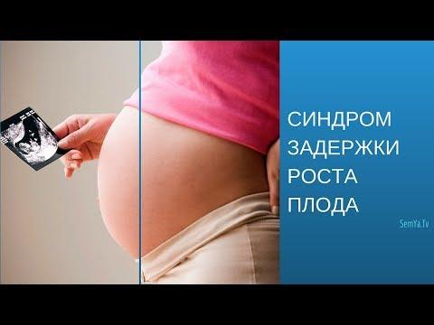 Синдром задержки развития плода (СЗРП)    Беременность и Роды