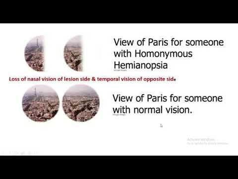 myopia probléma szembetegség, amelytől szem elől tévednek