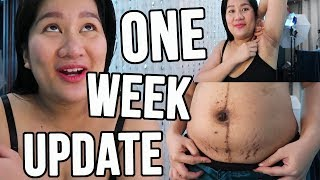 ONE WEEK POSTPARTUM UPDATE ( Stretch Marks, Dark Underarms and More ) #TheJKVlogs | Kris Lumagui